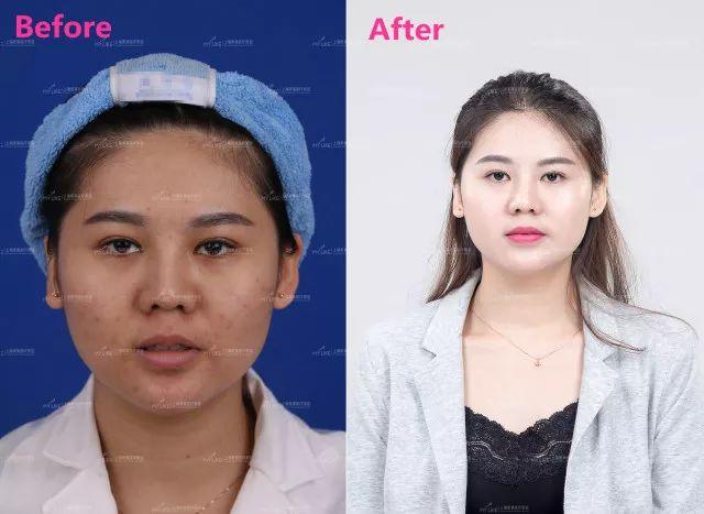 肿眼睛做双眼皮好吗,上海哪家医院做得好