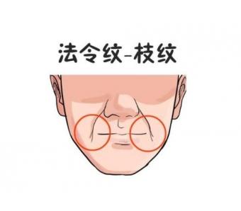 上海做面部吸脂,有什么不好的副作用吗