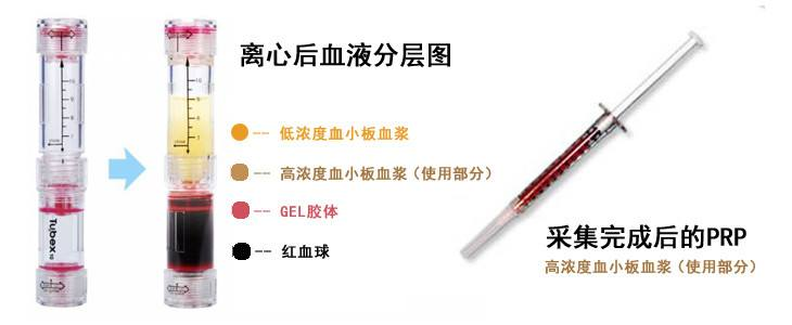 上海注射瘦腿针一针的价格多少