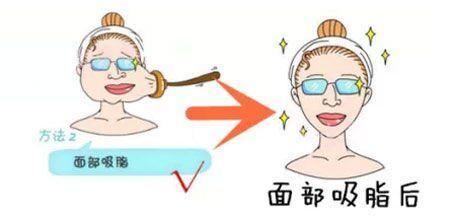 上海做光子嫩肤作用与功效有哪些