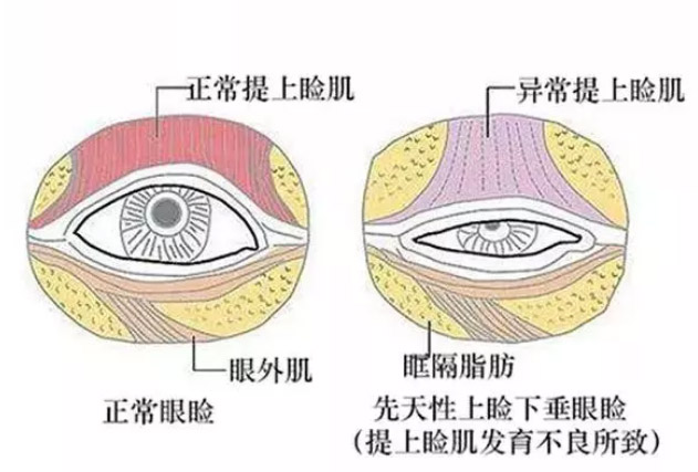 上海做激光除皱面部效果好吗