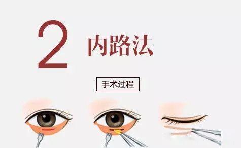 上海矫正牙齿,隐形矫正牙齿适合人群有哪些