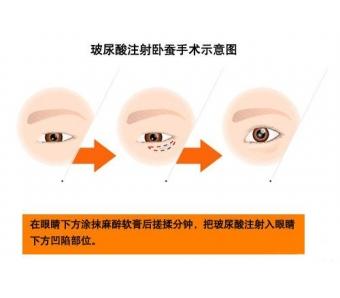 上海激光脱毛怎么收费