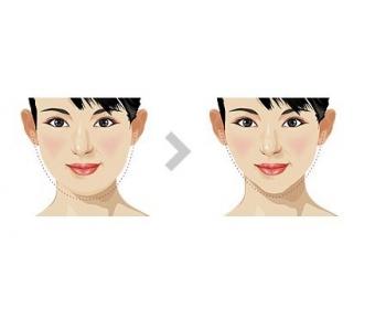 瘦脸针的危害有什么